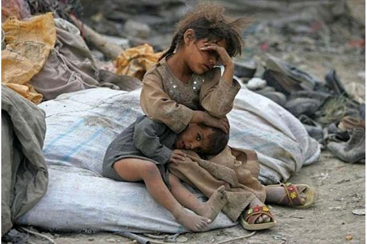 Yemen: 2,2 milioni di bambini in Yemen soffrono di malnutrizione acuta